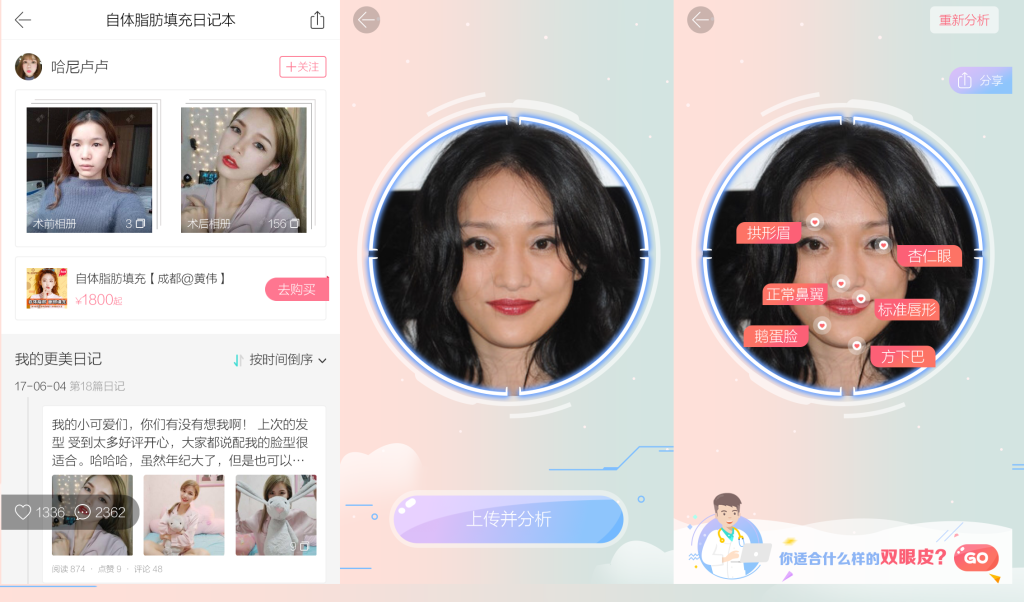 Facial recognizing technology lets users submit their photo to Gengmei and the app will suggest procedures.
