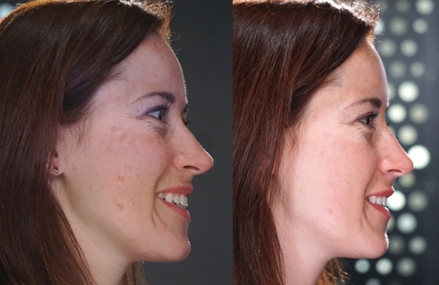 Before and after the Opte tool was used on a live model's face at the P&G demo station.